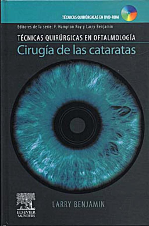 Benjamin Cirugia De Las Cataratas