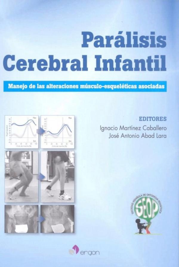 Martinez. Paralisis cerebral infantil
