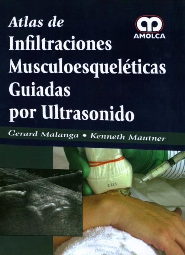 Malanga. Atlas de Infiltraciones Musculoesqueleticas